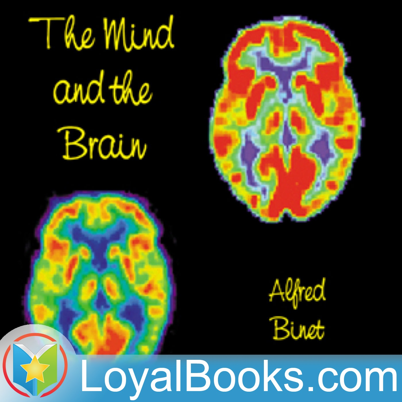 <![CDATA[The Mind and the Brain by Alfred Binet]]>